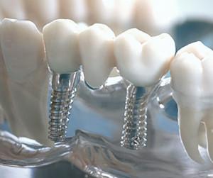 b-implantate