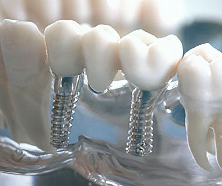 Имплантация: мифы и реальность