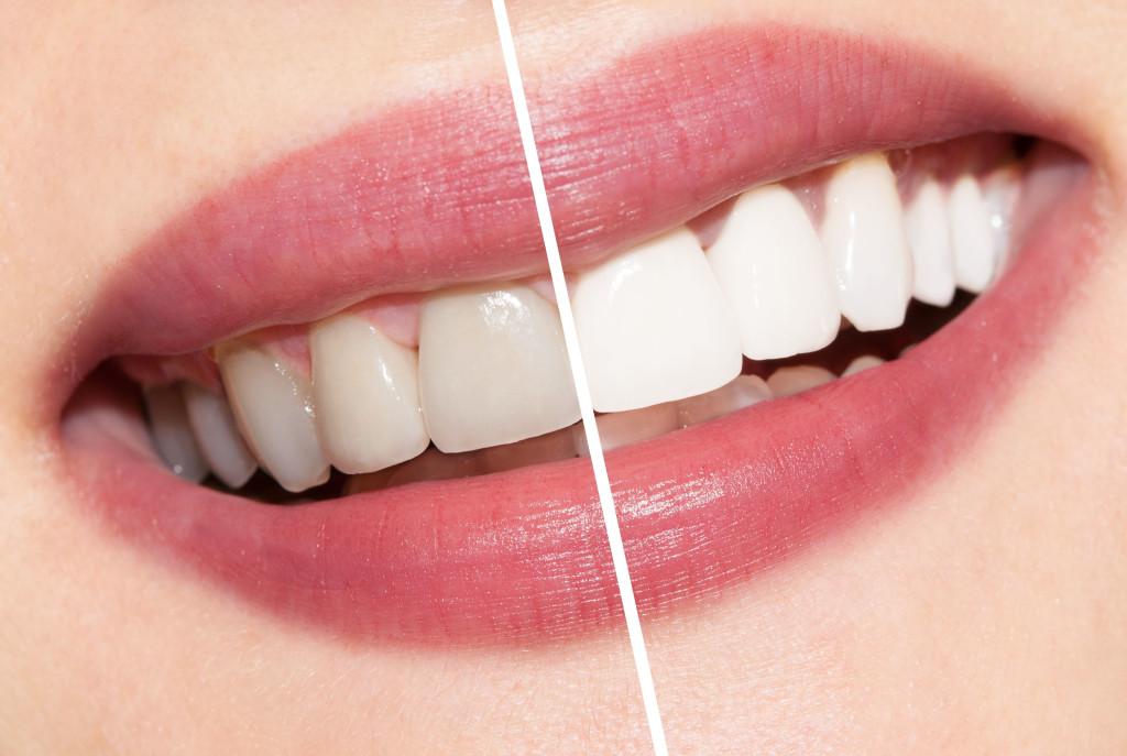 Отбеливание зубов по системе «Air flow»