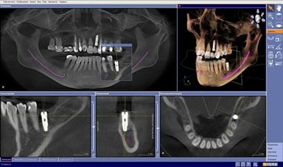 Подготовка к проведению рентгенологических исследований, компьютерной томографии и рентгенографии челюстно-лицевой области
